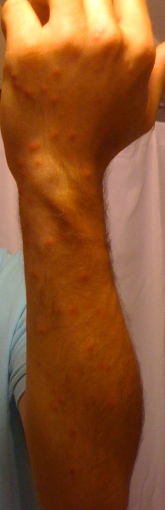 My left arm after a few days